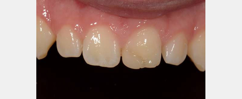 Before treatment: Front top teeth with one showing a ridge.