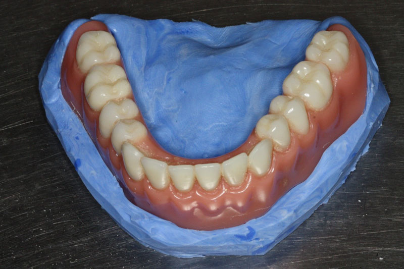 The polyvinylsiloxane investment base is trimmed with land areas that are perpendicular to or tapering away from the denture.
