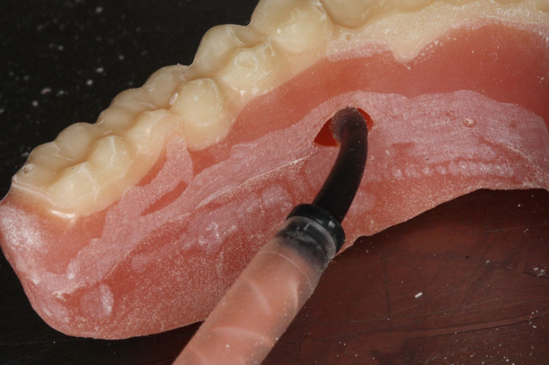 If voids or imperfection occurs during the duplication process, a similar material can be injected to repair the duplicate denture.