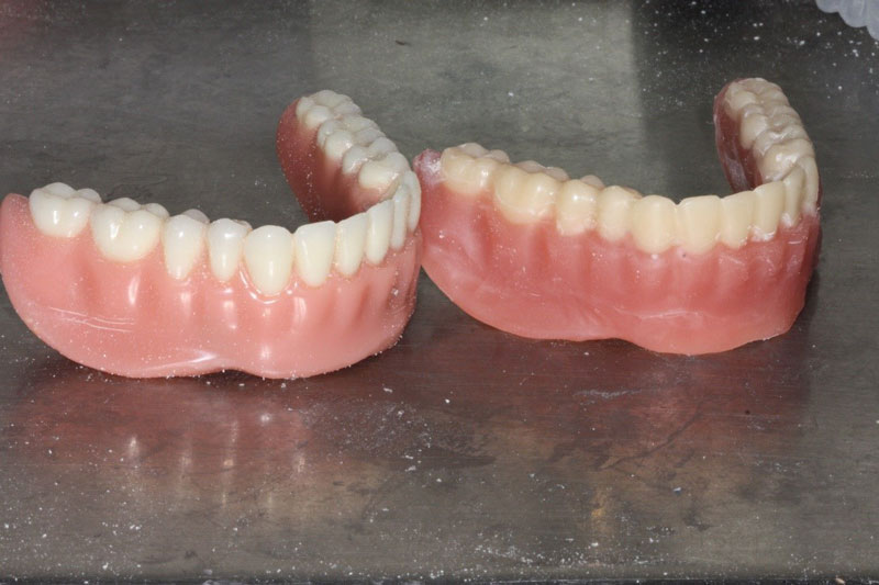 The duplicate denture provides a short-term alternative not having their actual prosthesis during repair.