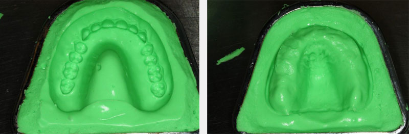 The cameo surface of the denture is a detailed negative of the original denture. The intaglio surface of the denture is clearly captured in the alginate investment.