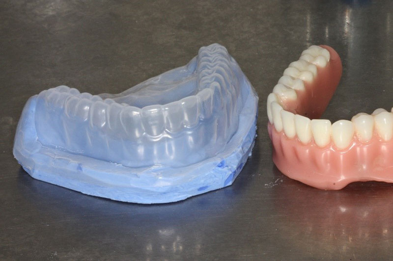 A reusable denture duplicating flask can be fabricated from polyvinylsiloxane impression material and Copyplast.