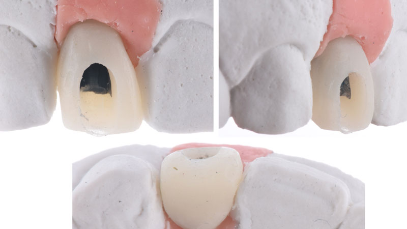 Screw retained provisional restoration on the master cast.