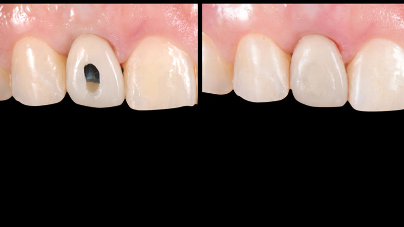 Screw-retained provisional restoration seated intra-orally and the screw access hole was obliterated with Teflon tape and composite resin.