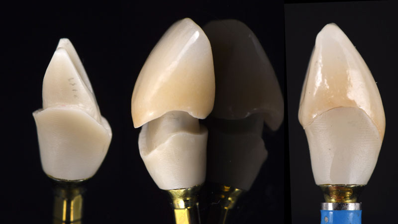 Final design of customized zirconia abutment bonded to Straumann Variobase and porcelain layered zirconia crown.