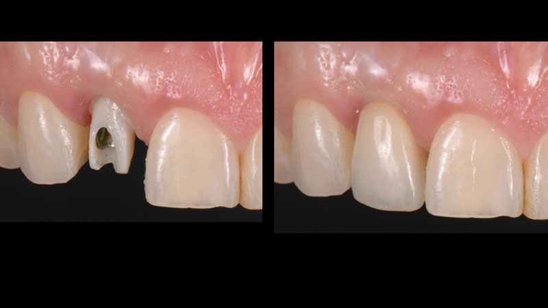 Customized zirconia abutment and final crown cemented temporarily in place.
