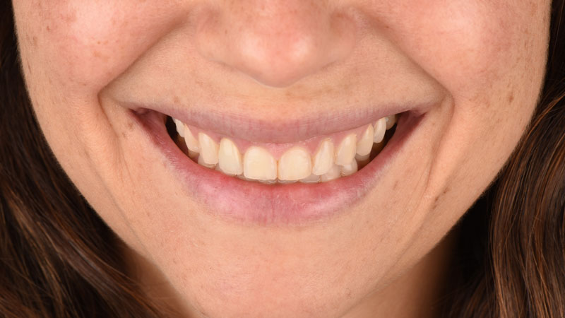 Frontal view of the patient's smile three months after crown insertion.