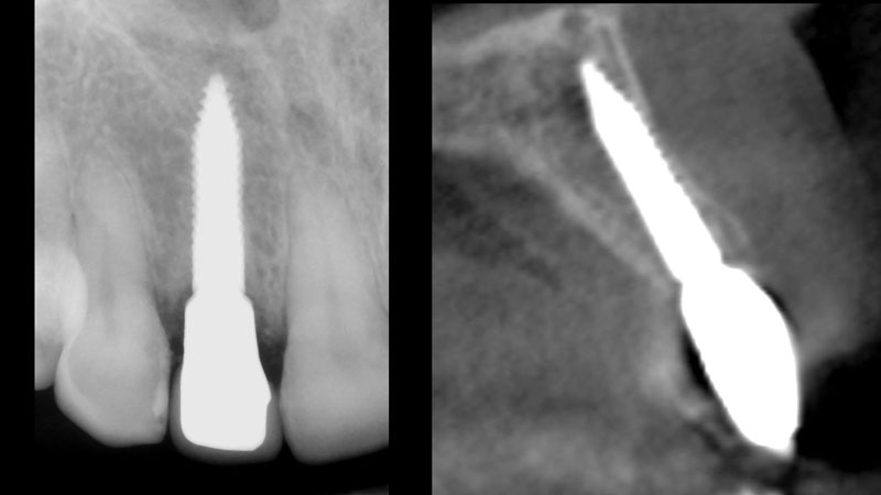 Periapical radiograph and CBCT image three months after insertion.