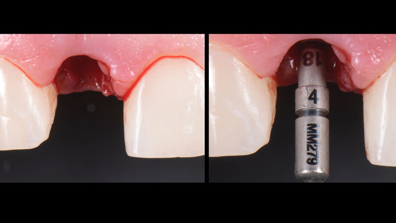 Initial drilling was performed and the guide pin was placed to confirm the implant position.