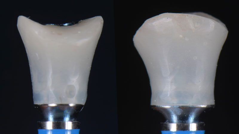 Frontal and mesial view of the customized healing abutment.