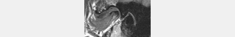 Left MRI - medial pole.