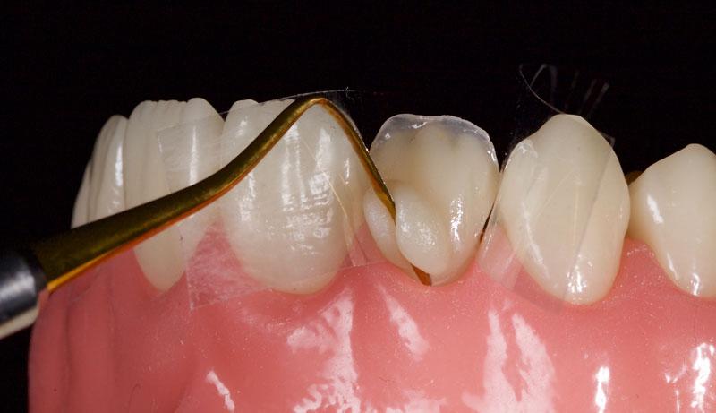 Chromatic composite of the correct VITA shade is placed to full contour in the gingival and mid thirds.