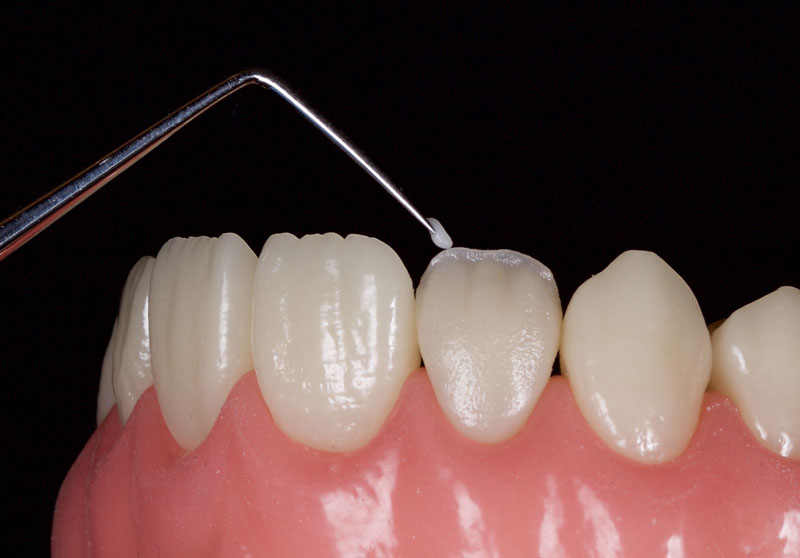 White, amber and other characterizations can be added to the incisal edge as desired.