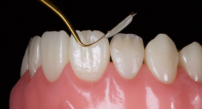 A highly translucent opalescent enamel mass can be modeled sparingly at the incisal edge.