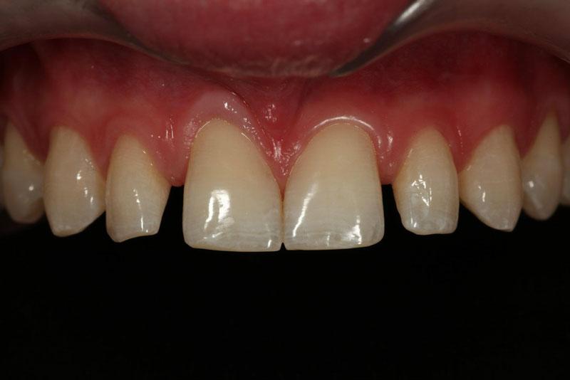 Single tooth microdontia pre-op.