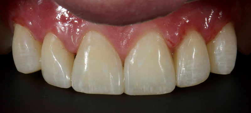 Single tooth microdontia post-op treated with direct resin.