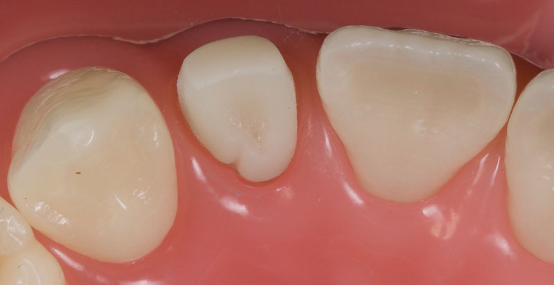 The peg lateral observed from the occlusal aspect.