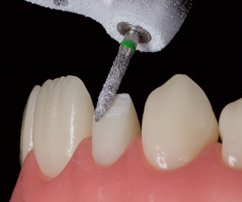 Minimal tooth preparation/reduction.