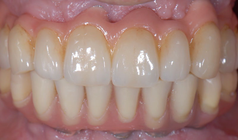 Frontal view on the day of insertion of a full arch layered zirconia implant-supported prosthesis on the maxilla and a hybrid implant-supported prosthesis on the mandible.
