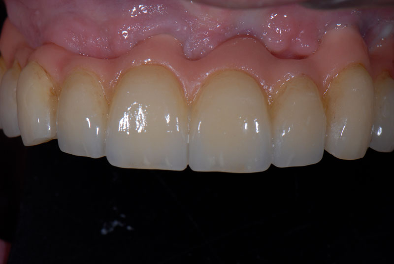 Frontal view of the repaired prosthesis seated in the patient's mouth.