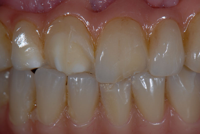 Five years after insertion, the patient fractured the buccal porcelain on #7, #8 and #9.