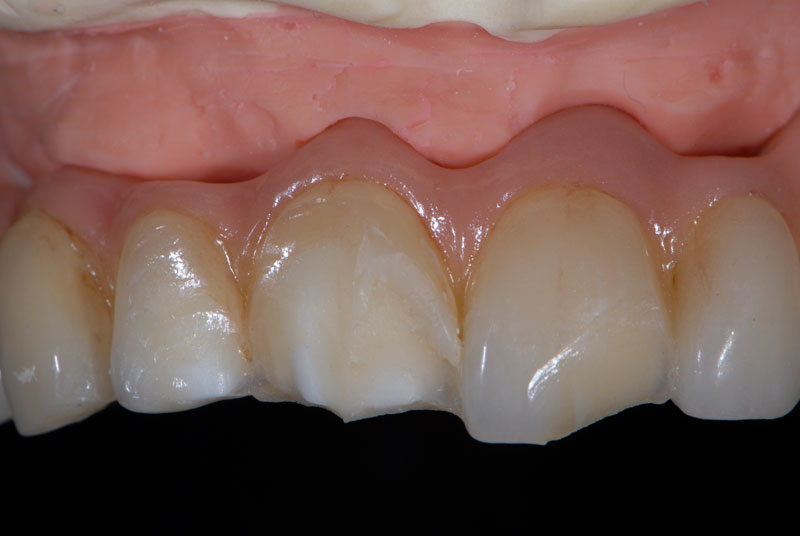The prosthesis was removed and analyzed in the master cast. No damage was observed in the zirconia framework or any other area of the prosthesis.