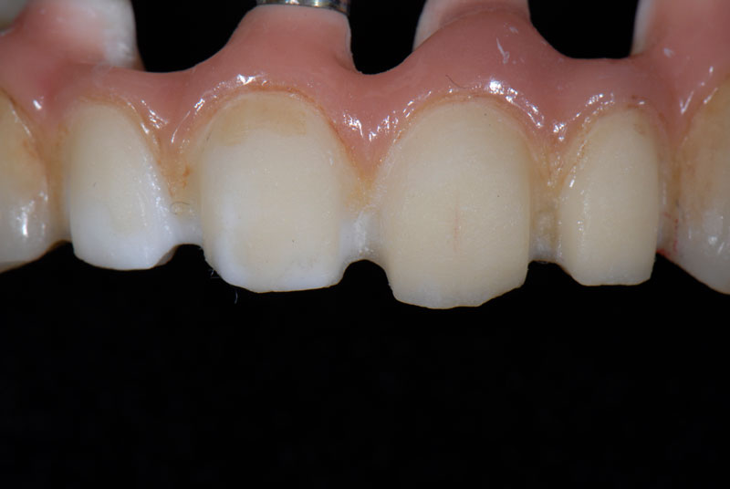 A PVS impression was made and both the impression and prosthesis were sent to the laboratory for veneer fabrication.