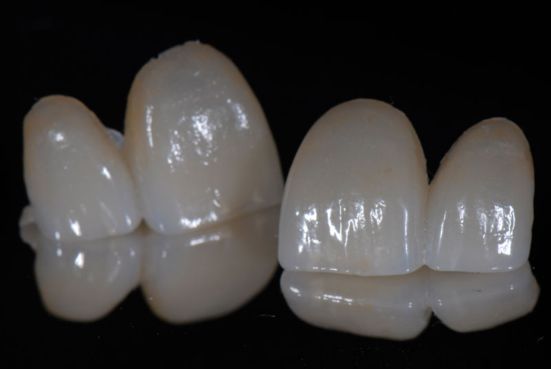 Porcelain veneers were fabricated while the patient utilized the prosthesis that was saved in the patient's box as a