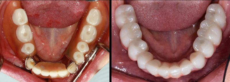 One patient wore a lower partial retained by two canines for 12 years before getting three dental implant-supported fixed bridge restorations.
