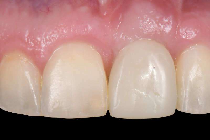 Frontal view of an implant-supported provisional restoration on the maxillary left central incisor after tissue maturation.