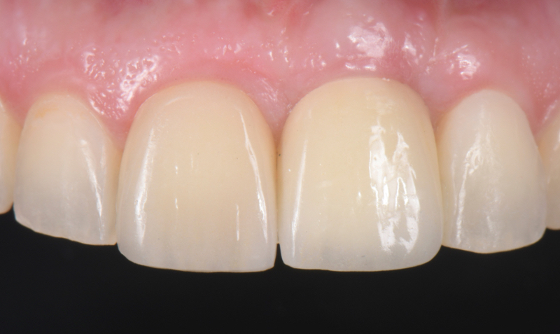 Frontal view of definitive restorations at 12 weeks post-insertion.