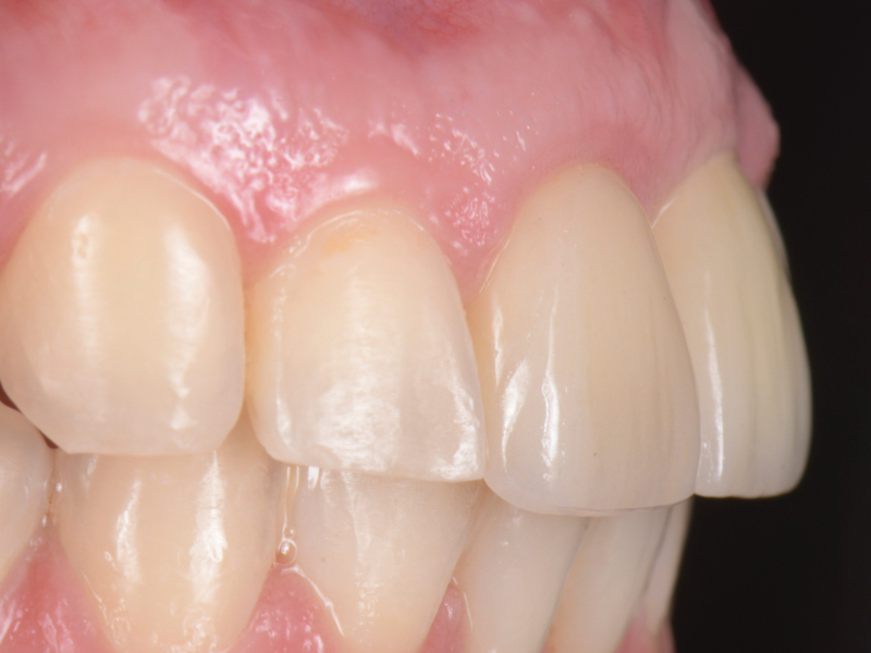 Lateral view of definitive restorations. Note the adequate volume and support of the soft tissue.