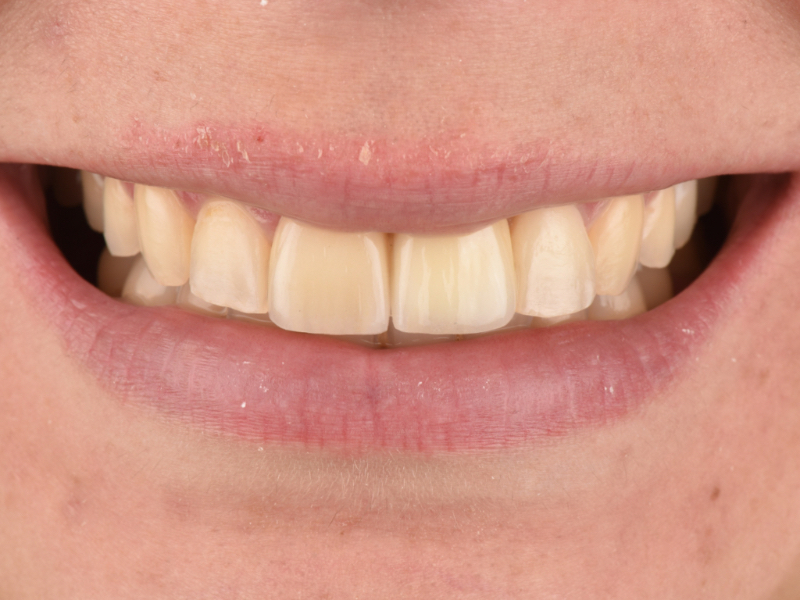 Frontal view of the final smile of the patient.