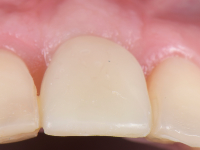 Close-up view of the buccal soft tissue depicting proper support of the provisional.