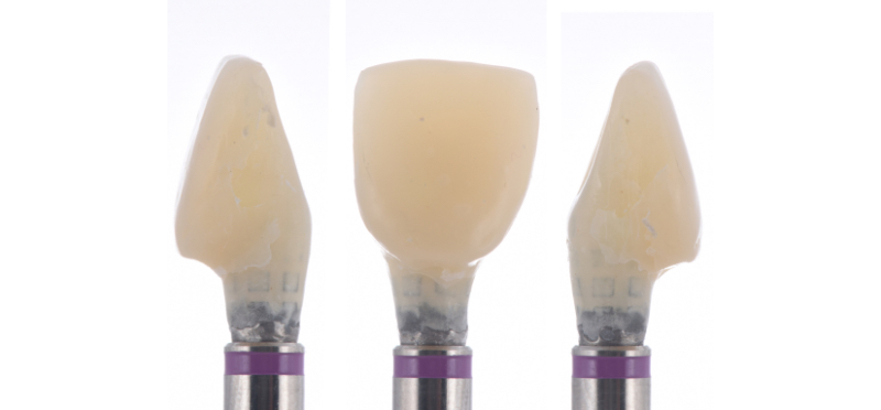Different views of the provisional restoration secured in an implant analog.