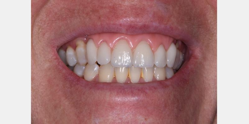 Teeth in wax try-in.