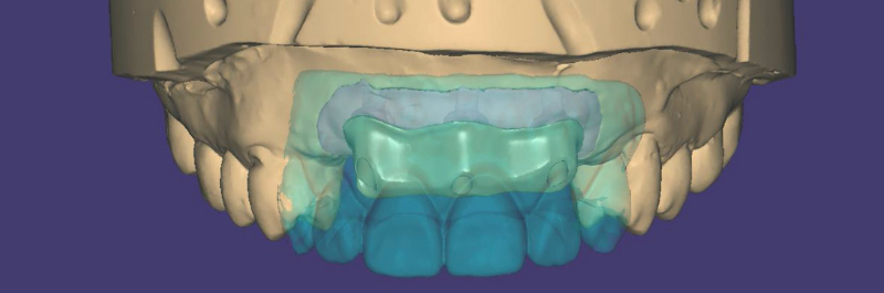 Bar scanned into exocad and further prosthetic design complete.