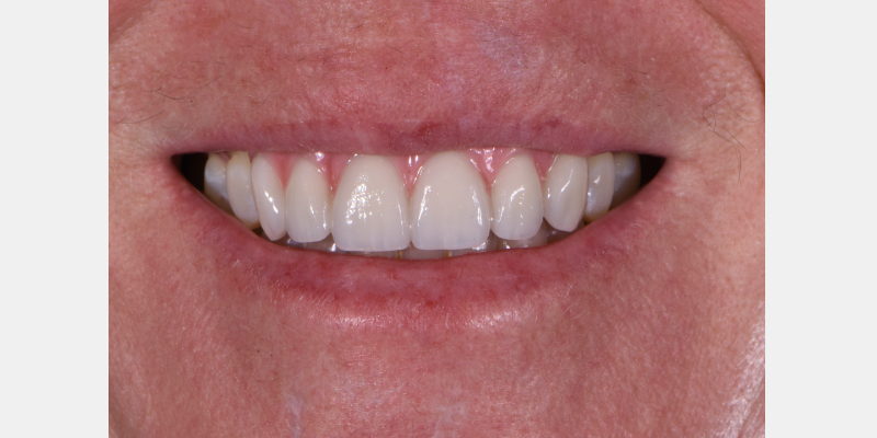 Close-up smile of the final prosthesis.