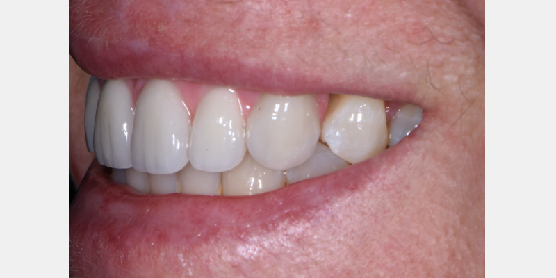 Close-up lateral smile of the final prosthesis.