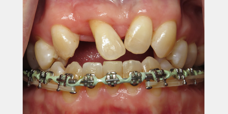 Patient is ready for extracting the remaining maxillary anteriors and for bone grafting.