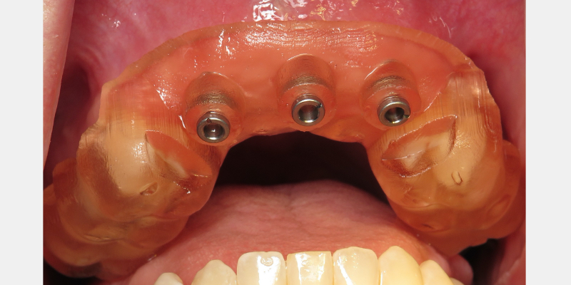 Surgical guide in mouth.