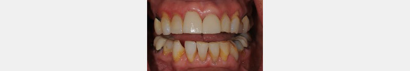 Leni, a referral patient who complained about the black triangle between her two front teeth.
