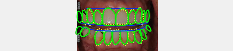 Leni's mouth with Facially Generated Treatment Planning template applied.
