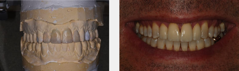 Side by side images, on the left is a full set of molded teeth, on the right the patient's smile.