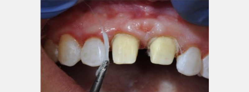 Cotton wisp from cotton roll dipped in Hemodent (Premier Dental) for tissue retraction.