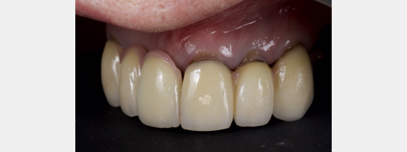 Existing crowns failing at the margins.