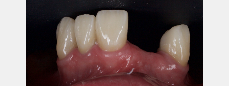 Final zirconia crowns showing nice aesthetic outcome and tissue health.