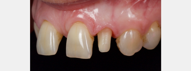 Prepared tooth: observe no apparent margin.