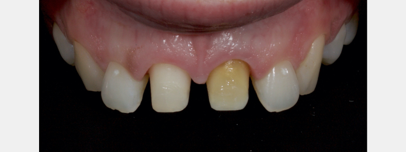 Prior to trimming the die the position of the gingival margin is marked in black pencil.