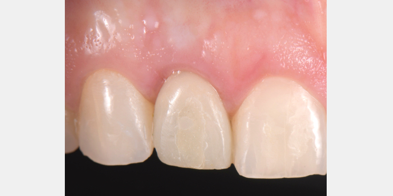Frontal view of a screw-retained implant supported provisional restoration on a maxillary lateral incisor.